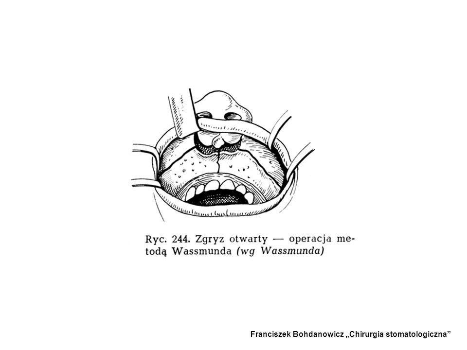 3.ZABIEG WASSMUNDA - -Stosowany w zgryzie całkowitym lub częściowym. - -Uruchomienie szczęki całkowite lub odcinkowe za pomocą osteotomii, a następnie
