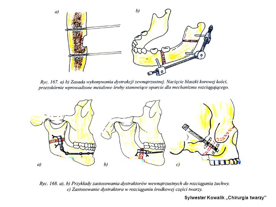 Najczęściej spotykana metoda w dystrakcji żuchwy polega na nacięciu okostnej i warstwy korowej bez przerwania ciągłości żuchwy. Osteotomia czyli przec