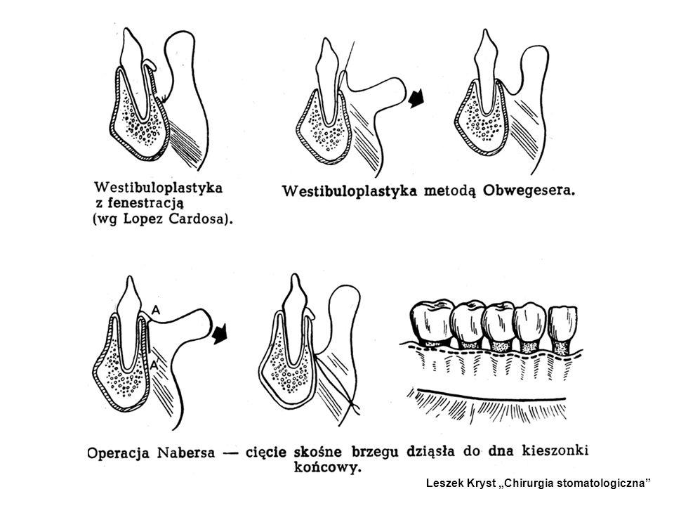 WESTIBULOPLASTYKA - -Polega na pogłębieniu przedsionka jamy ustnej. - -W zabiegu wytwarza się pierwotne płaty śluzówkowe bez nacinania okostnej. Jedno