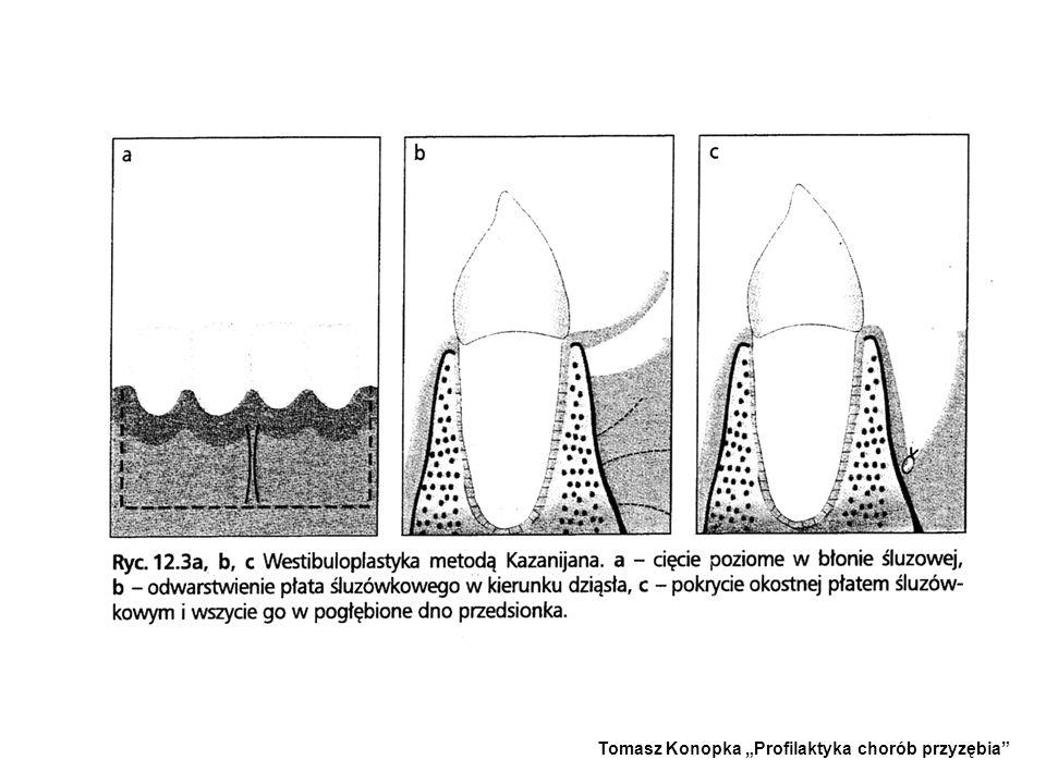 Do pogłębiania przedsionka stosowana jest też metoda Kazanijana. Wskazaniem do zabiegu jest płytki przedsionek i nieprawidłowy przyczep wędzidełka war