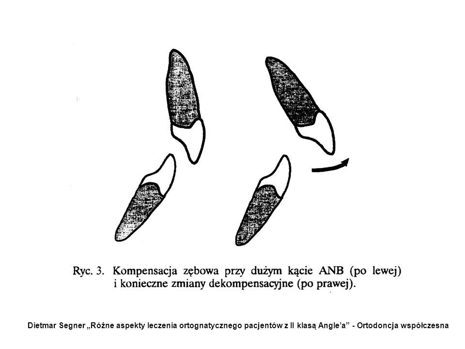 ZĘBOWE CELE LECZENIA: Istotnym zagadnieniem podczas orodontycznej części leczenia zespołowego jest położenie siekaczy w płaszczyżnie strzałkowej i pio