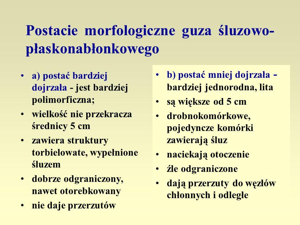 Postacie morfologiczne guza śluzowo- płaskonabłonkowego a) postać bardziej dojrzała - jest bardziej polimorficzna; wielkość nie przekracza średnicy 5