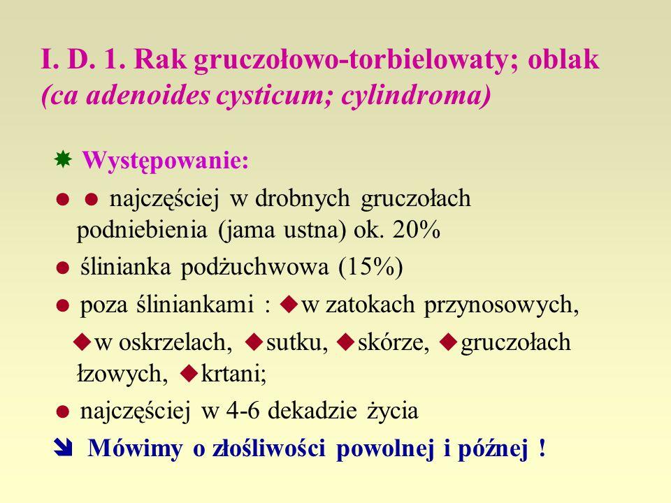 I. D. 1. Rak gruczołowo-torbielowaty; oblak (ca adenoides cysticum; cylindroma) Występowanie: najczęściej w drobnych gruczołach podniebienia (jama ust