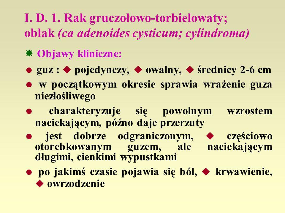 I. D. 1. Rak gruczołowo-torbielowaty; oblak (ca adenoides cysticum; cylindroma) Objawy kliniczne: guz : pojedynczy, owalny, średnicy 2-6 cm w początko