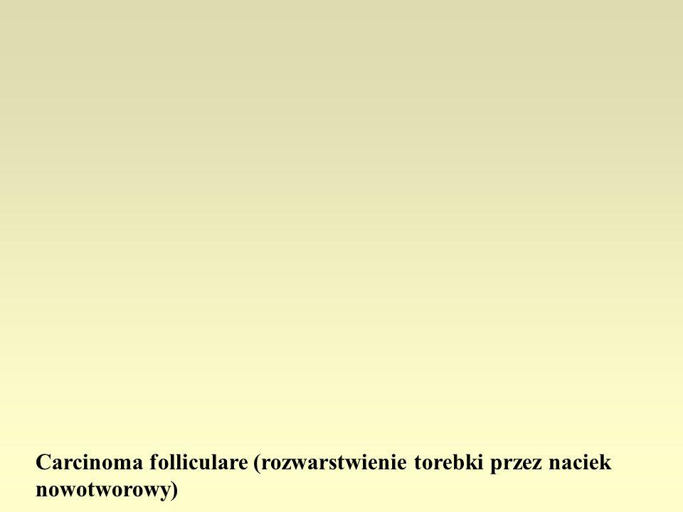 Carcinoma folliculare (rozwarstwienie torebki przez naciek nowotworowy)