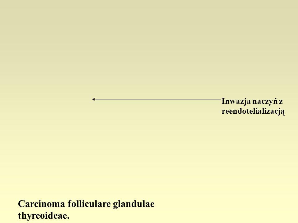 Carcinoma folliculare glandulae thyreoideae. Inwazja naczyń z reendotelializacją