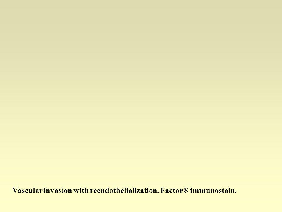 Vascular invasion with reendothelialization. Factor 8 immunostain.