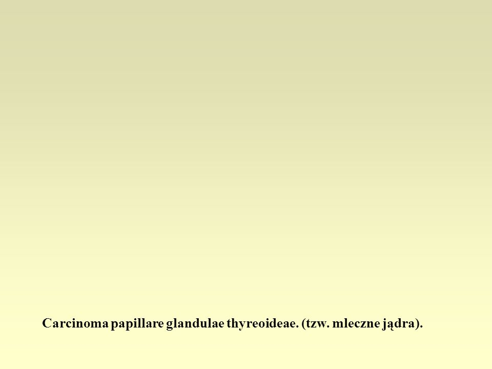 Carcinoma papillare glandulae thyreoideae. (tzw. mleczne jądra).
