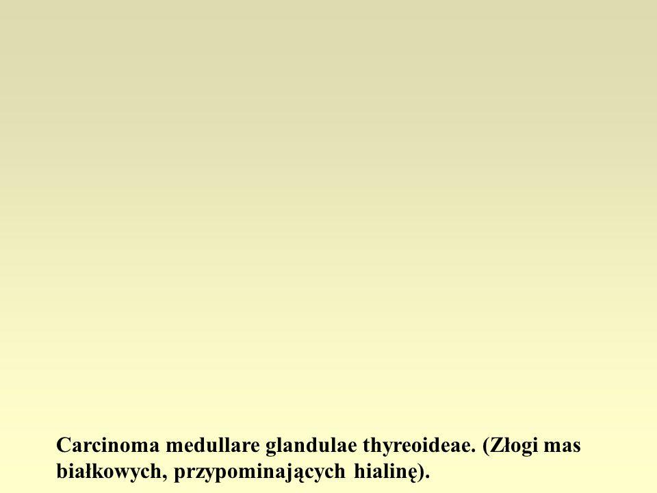 Carcinoma medullare glandulae thyreoideae. (Złogi mas białkowych, przypominających hialinę).
