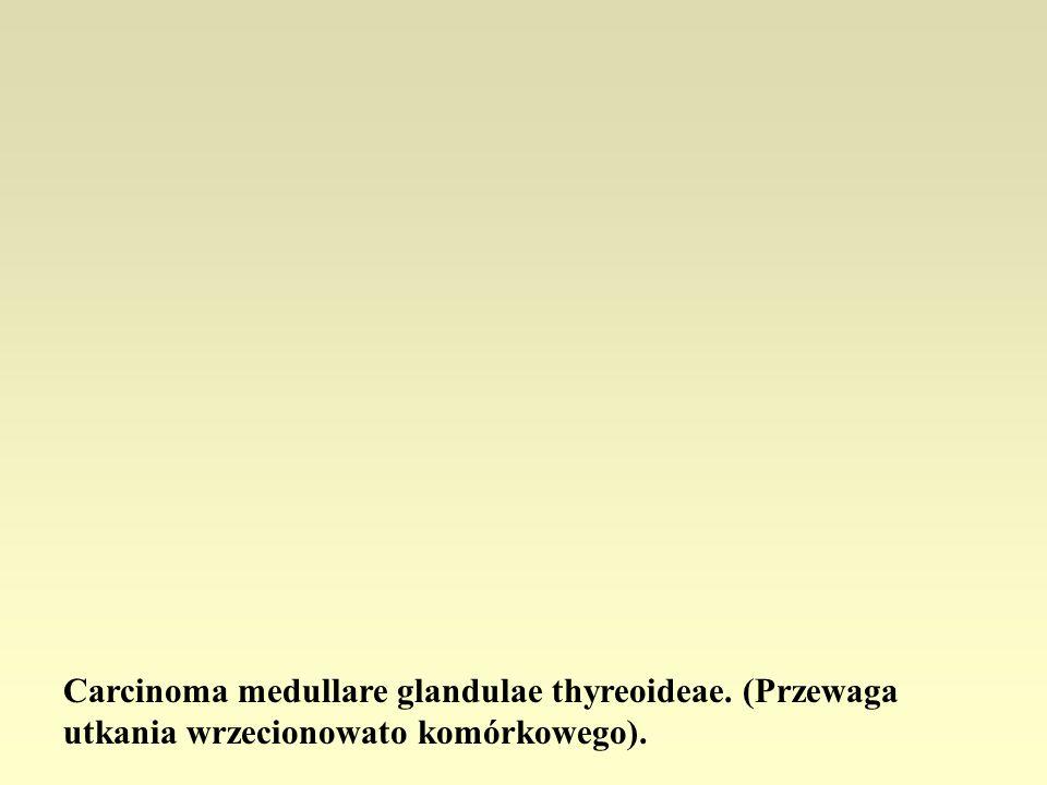 Carcinoma medullare glandulae thyreoideae. (Przewaga utkania wrzecionowato komórkowego).