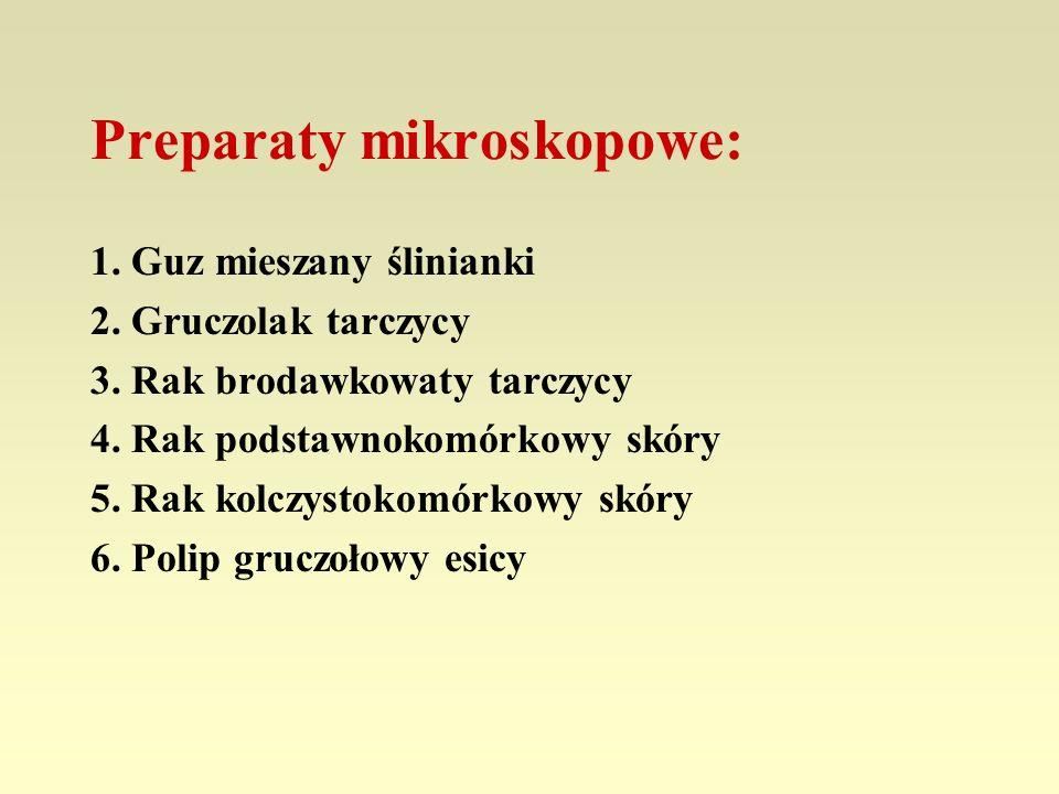 Preparaty mikroskopowe: 1. Guz mieszany ślinianki 2. Gruczolak tarczycy 3. Rak brodawkowaty tarczycy 4. Rak podstawnokomórkowy skóry 5. Rak kolczystok