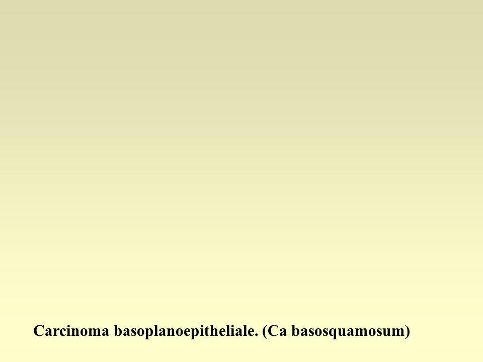 Carcinoma basoplanoepitheliale. (Ca basosquamosum)