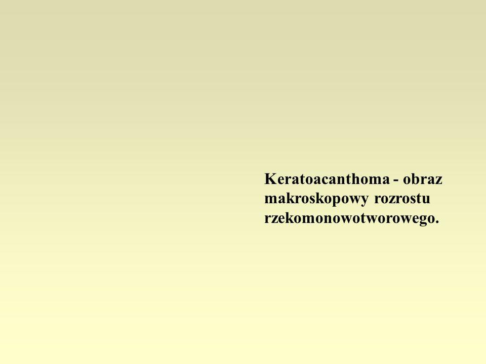 Keratoacanthoma - obraz makroskopowy rozrostu rzekomonowotworowego.