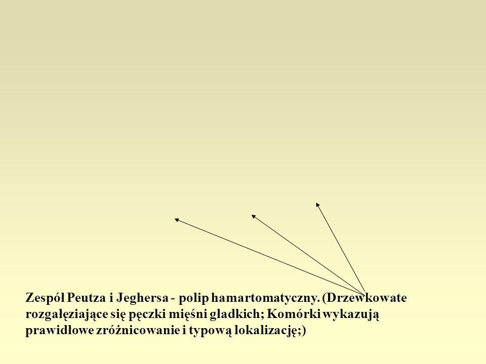 Zespół Peutza i Jeghersa - polip hamartomatyczny. (Drzewkowate rozgałęziające się pęczki mięśni gładkich; Komórki wykazują prawidłowe zróżnicowanie i