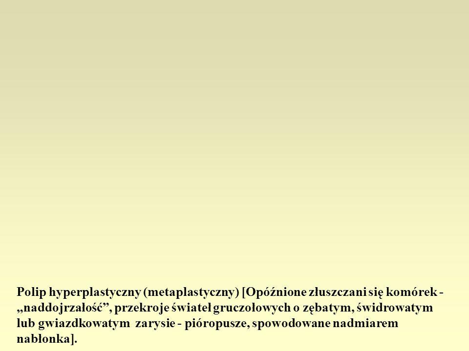 Polip hyperplastyczny (metaplastyczny) [Opóźnione złuszczani się komórek - naddojrzałość, przekroje świateł gruczołowych o zębatym, świdrowatym lub gw