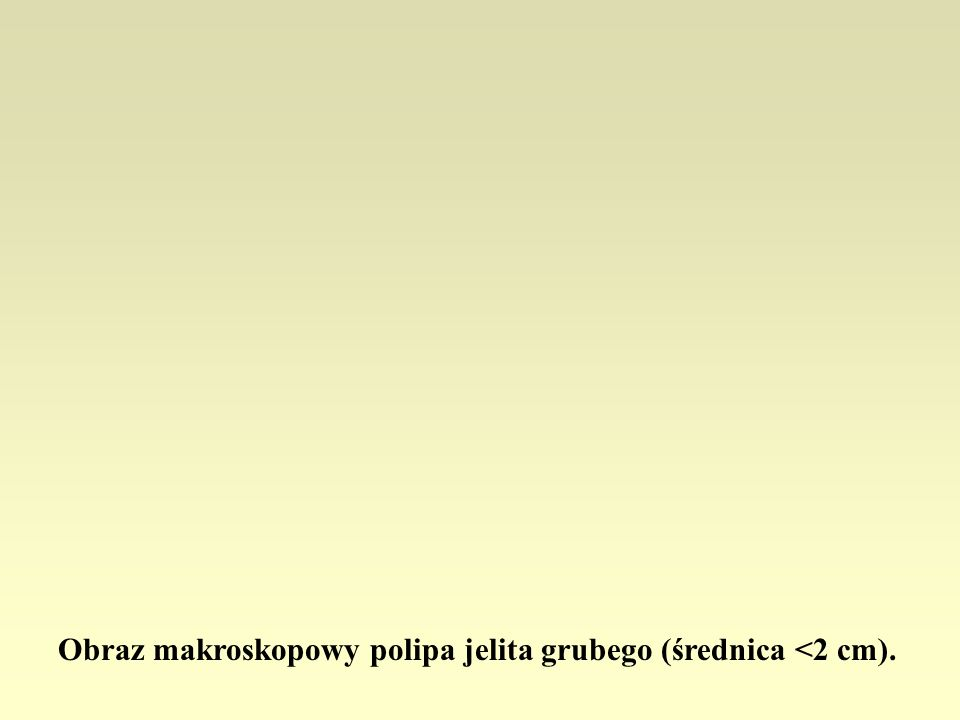 Obraz makroskopowy polipa jelita grubego (średnica <2 cm).