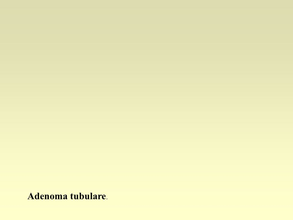 Adenoma tubulare.