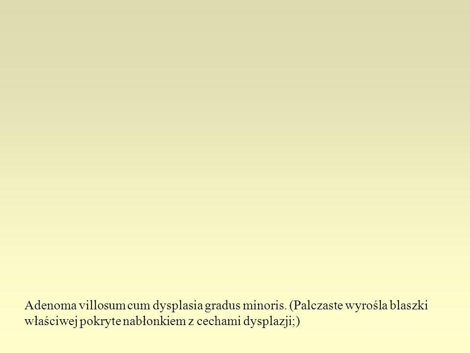 Adenoma villosum cum dysplasia gradus minoris. (Palczaste wyrośla blaszki właściwej pokryte nabłonkiem z cechami dysplazji;)