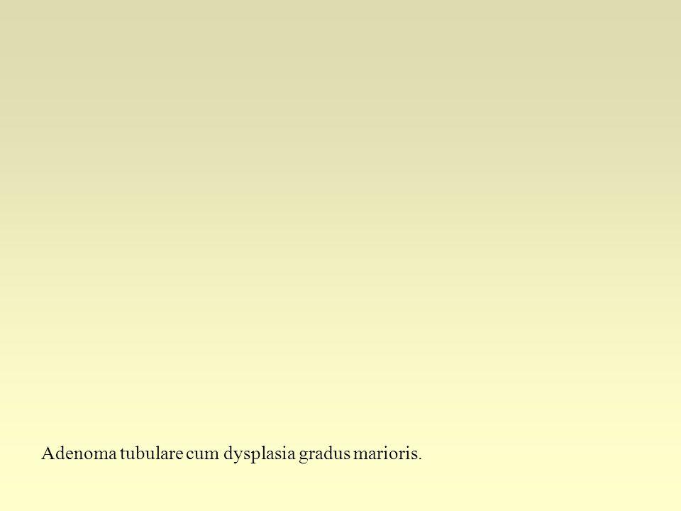 Adenoma tubulare cum dysplasia gradus marioris.