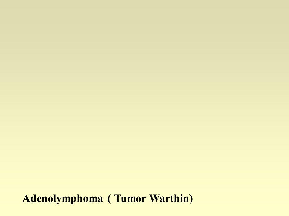 Gruczolakochłoniak Przestrzenie torbielowate, zrąb z gęsto ułożonymi limfocytami tworzącymi grudki chłonne.