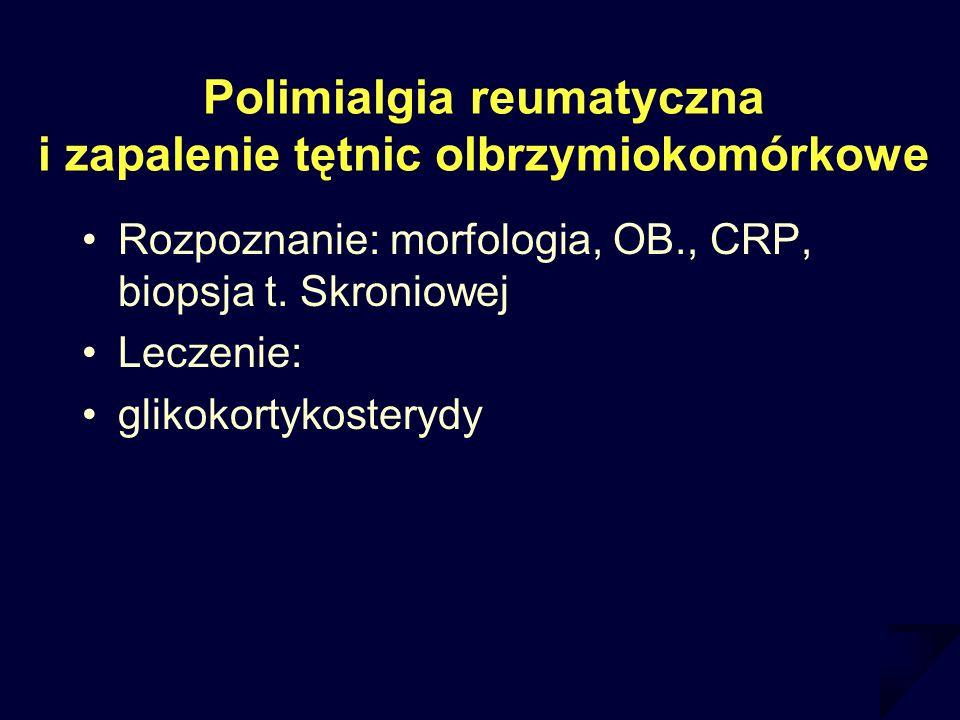 Polimialgia reumatyczna i zapalenie tętnic olbrzymiokomórkowe Rozpoznanie: morfologia, OB., CRP, biopsja t. Skroniowej Leczenie: glikokortykosterydy