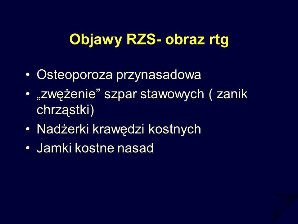 Objawy RZS- obraz rtg Osteoporoza przynasadowa zwężenie szpar stawowych ( zanik chrząstki) Nadżerki krawędzi kostnych Jamki kostne nasad