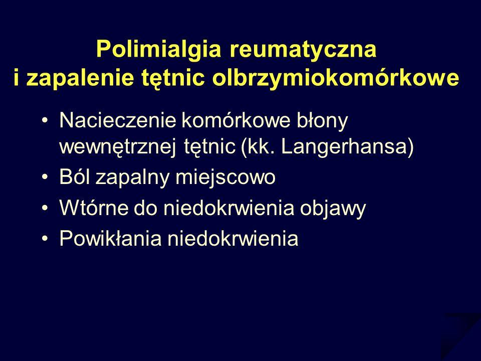 Polimialgia reumatyczna i zapalenie tętnic olbrzymiokomórkowe Nacieczenie komórkowe błony wewnętrznej tętnic (kk. Langerhansa) Ból zapalny miejscowo W