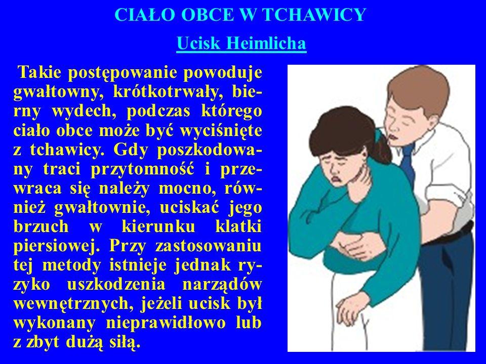 CIAŁO OBCE W TCHAWICY Ucisk Heimlicha Takie postępowanie powoduje gwałtowny, krótkotrwały, bie- rny wydech, podczas którego ciało obce może być wyciśnięte z tchawicy.