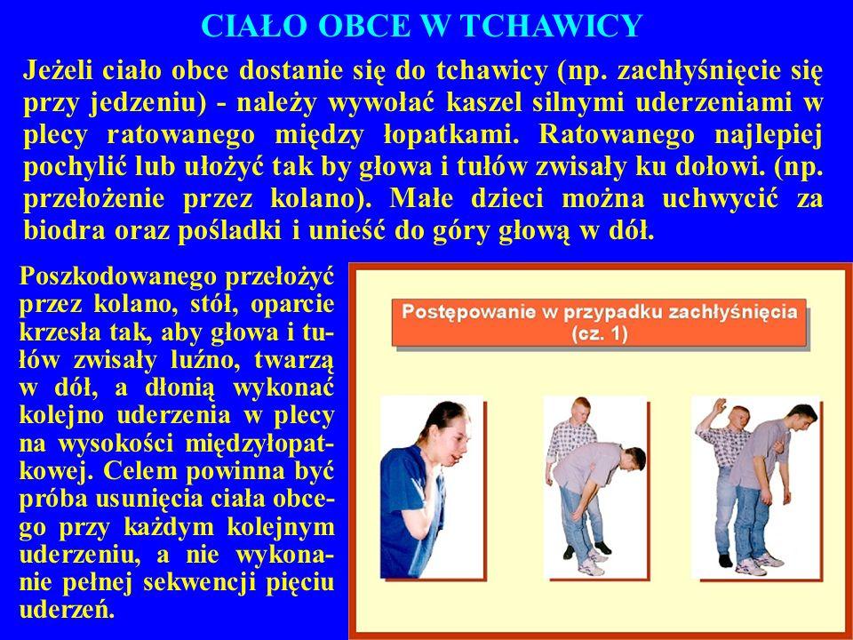 CIAŁO OBCE W TCHAWICY Jeżeli ciało obce dostanie się do tchawicy (np. zachłyśnięcie się przy jedzeniu) - należy wywołać kaszel silnymi uderzeniami w p