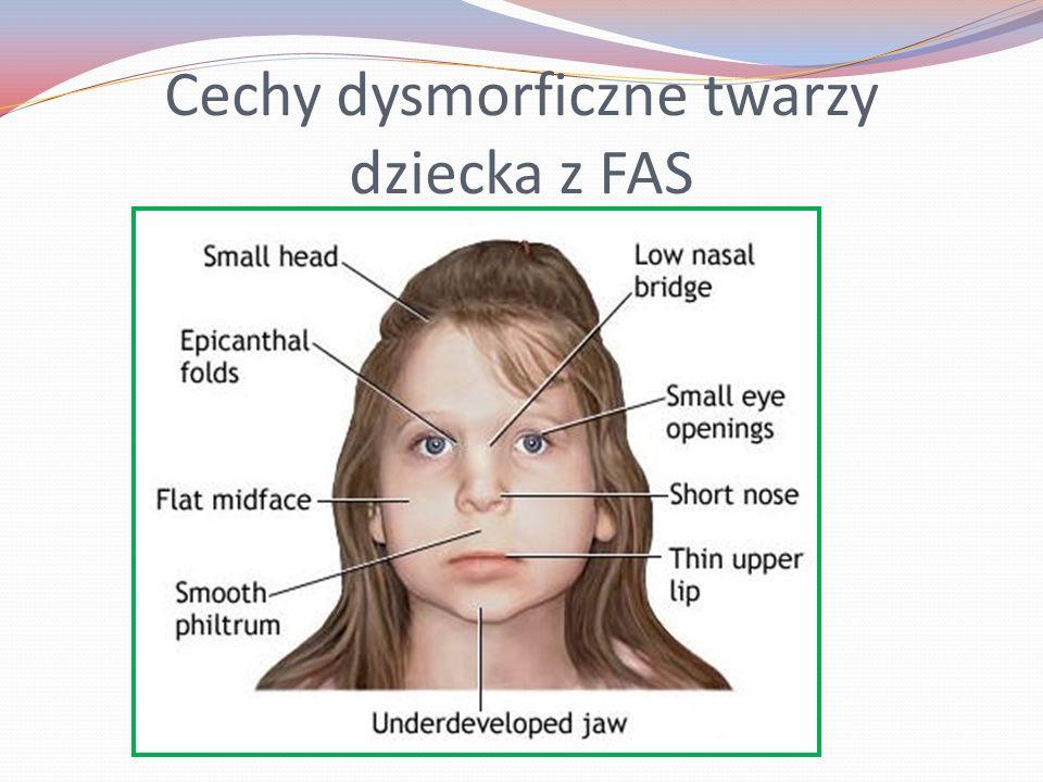 Cechy dysmorficzne twarzy dziecka z FAS