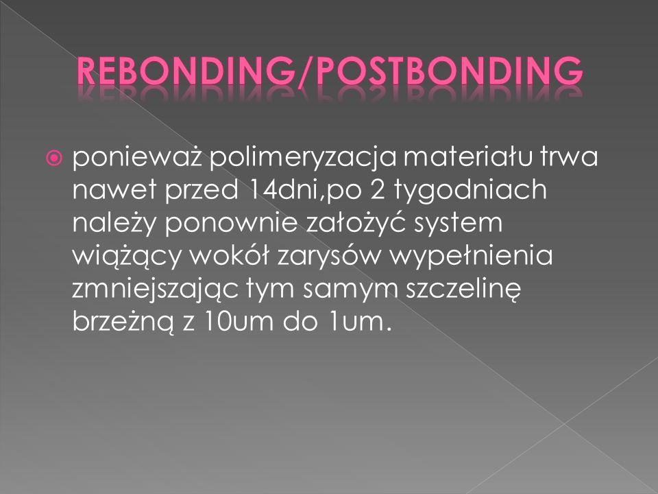 ponieważ polimeryzacja materiału trwa nawet przed 14dni,po 2 tygodniach należy ponownie założyć system wiążący wokół zarysów wypełnienia zmniejszając tym samym szczelinę brzeżną z 10um do 1um.