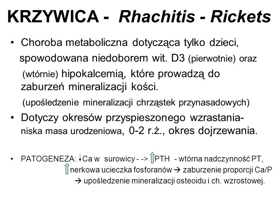KRZYWICA - Rhachitis - Rickets Choroba metaboliczna dotycząca tylko dzieci, spowodowana niedoborem wit. D3 (pierwotnie) oraz (wtórnie) hipokalcemią, k