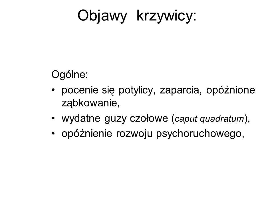 Objawy krzywicy: Ogólne: pocenie się potylicy, zaparcia, opóźnione ząbkowanie, wydatne guzy czołowe ( caput quadratum ), opóźnienie rozwoju psychoruch