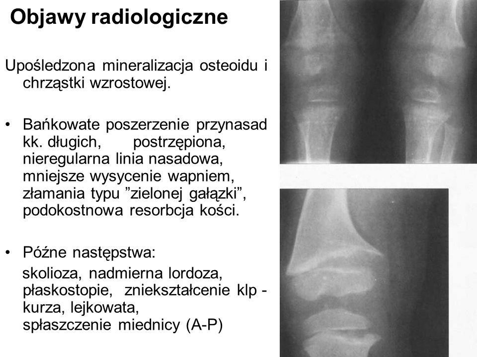 Objawy radiologiczne Upośledzona mineralizacja osteoidu i chrząstki wzrostowej. Bańkowate poszerzenie przynasad kk. długich, postrzępiona, nieregularn