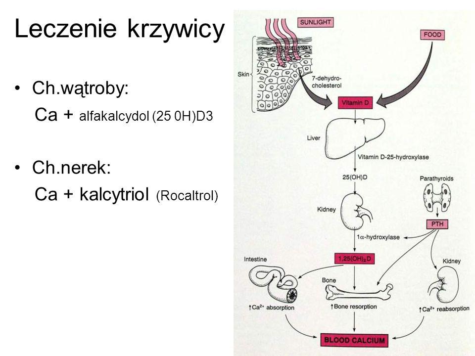 Leczenie krzywicy Ch.wątroby: Ca + alfakalcydol (25 0H)D3 Ch.nerek: Ca + kalcytriol (Rocaltrol)