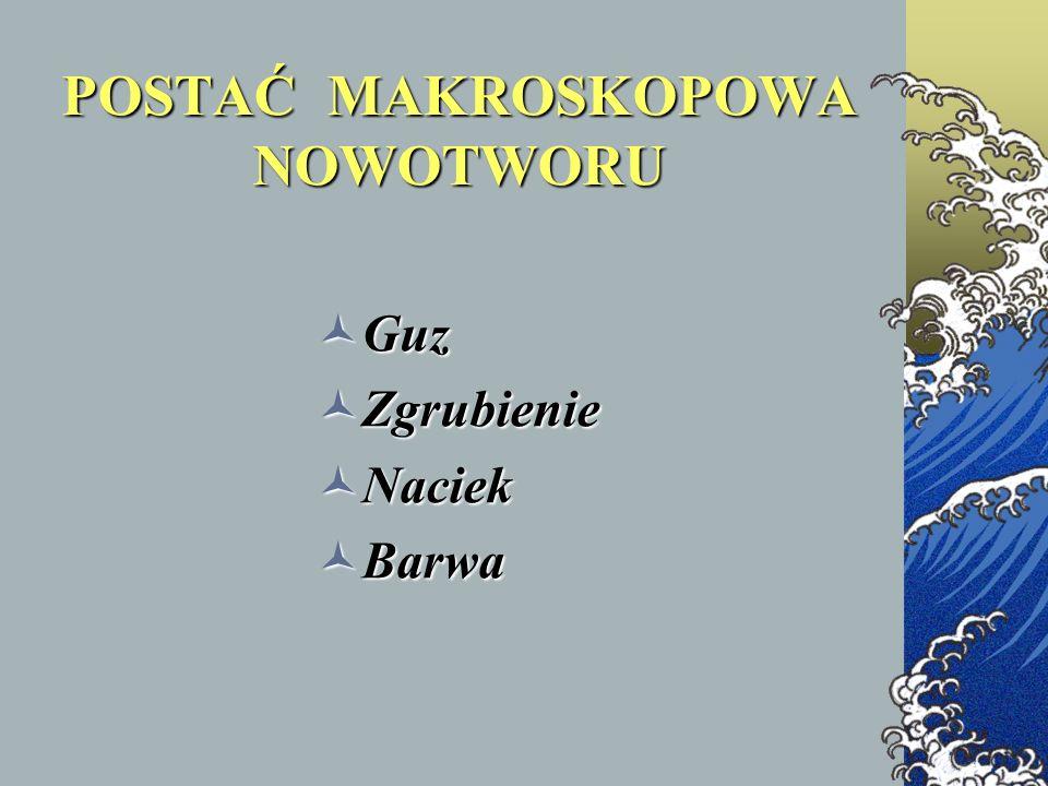 POSTAĆ MAKROSKOPOWA NOWOTWORU Guz Guz Zgrubienie Zgrubienie Naciek Naciek Barwa Barwa