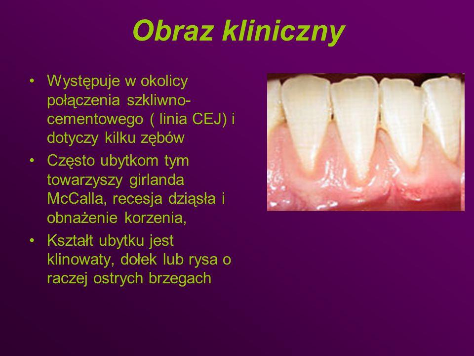 Obraz kliniczny Występuje w okolicy połączenia szkliwno- cementowego ( linia CEJ) i dotyczy kilku zębów Często ubytkom tym towarzyszy girlanda McCalla