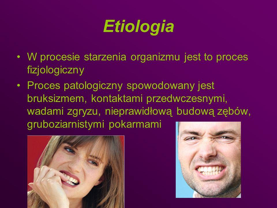Etiologia W procesie starzenia organizmu jest to proces fizjologiczny Proces patologiczny spowodowany jest bruksizmem, kontaktami przedwczesnymi, wada