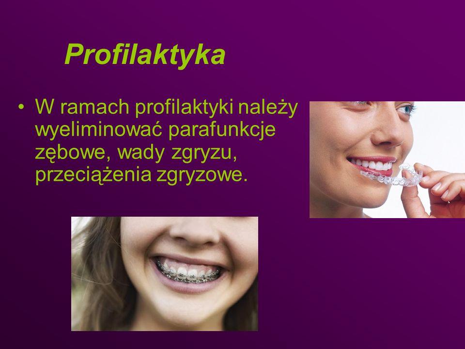 Profilaktyka W ramach profilaktyki należy wyeliminować parafunkcje zębowe, wady zgryzu, przeciążenia zgryzowe.