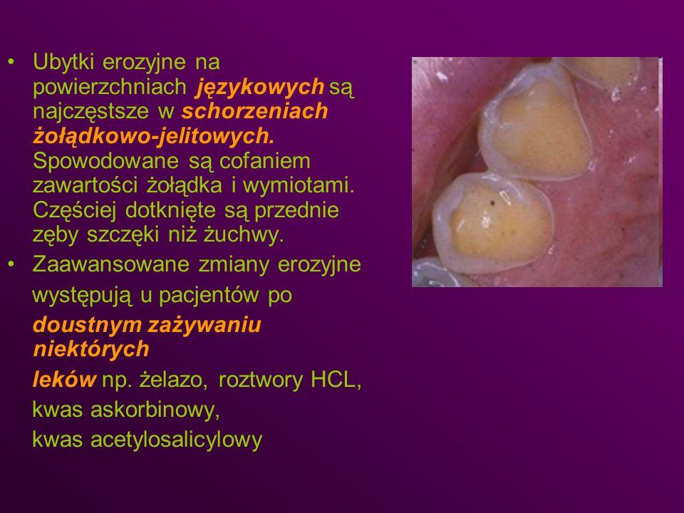 Ubytki erozyjne na powierzchniach językowych są najczęstsze w schorzeniach żołądkowo-jelitowych. Spowodowane są cofaniem zawartości żołądka i wymiotam