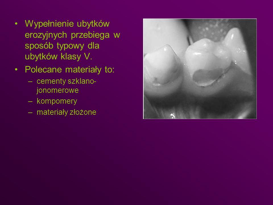 Wypełnienie ubytków erozyjnych przebiega w sposób typowy dla ubytków klasy V. Polecane materiały to: –cementy szklano- jonomerowe –kompomery –materiał