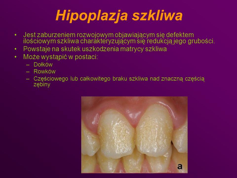 Hipoplazja miejscowa: Przykładam są zęby Turnera- charakteryzują się one zmniejszonym rozmiarem korony z częściowym, nieregularnym brakiem szkliwa, czasem pojawia się żółtobrązowe zmętnienie pozostałego szkliwa.