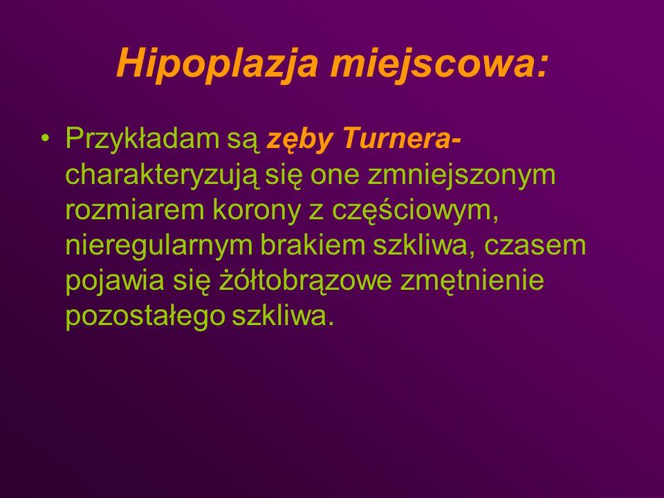 Hipoplazja miejscowa: Przykładam są zęby Turnera- charakteryzują się one zmniejszonym rozmiarem korony z częściowym, nieregularnym brakiem szkliwa, cz