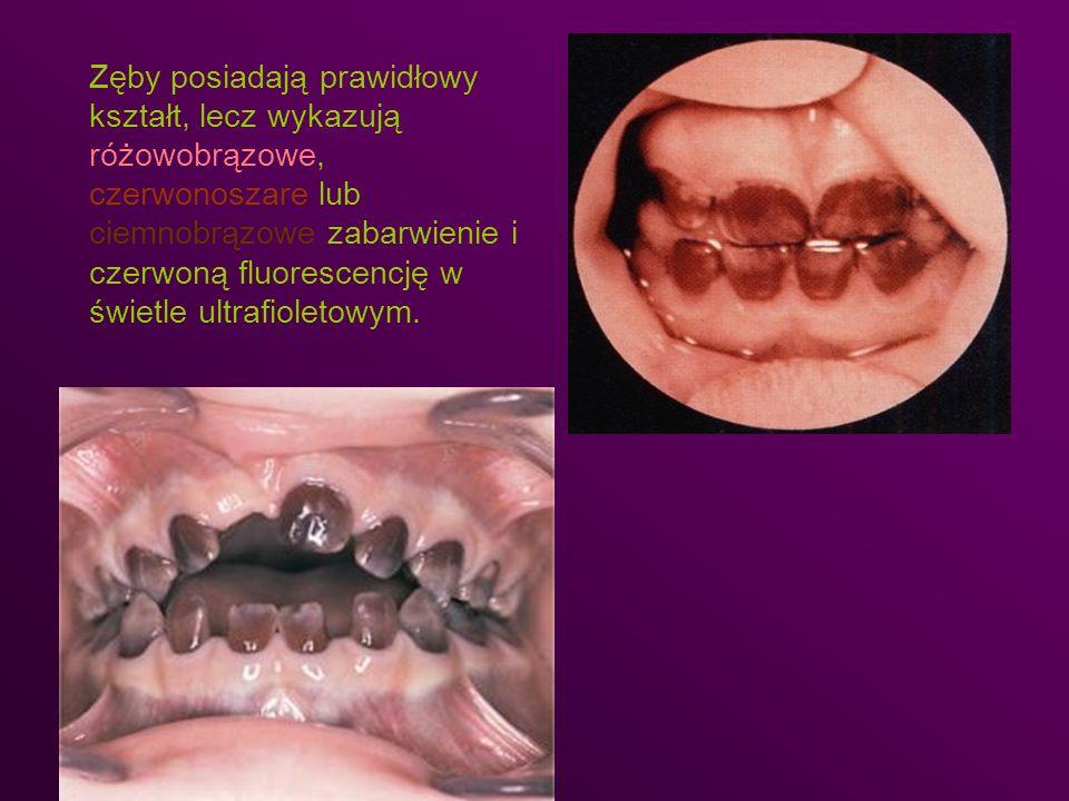 Zęby posiadają prawidłowy kształt, lecz wykazują różowobrązowe, czerwonoszare lub ciemnobrązowe zabarwienie i czerwoną fluorescencję w świetle ultrafi