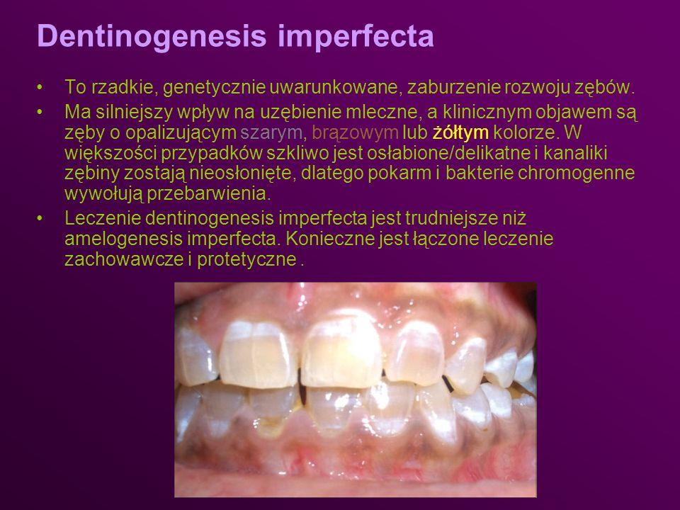 Dentinogenesis imperfecta To rzadkie, genetycznie uwarunkowane, zaburzenie rozwoju zębów. Ma silniejszy wpływ na uzębienie mleczne, a klinicznym objaw