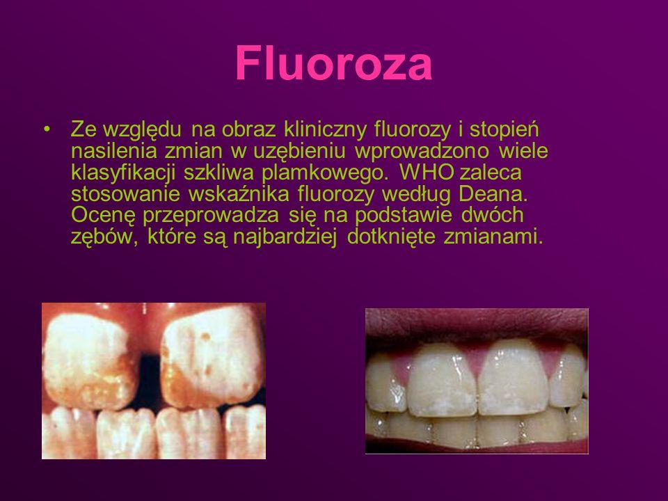 Fluoroza Ze względu na obraz kliniczny fluorozy i stopień nasilenia zmian w uzębieniu wprowadzono wiele klasyfikacji szkliwa plamkowego. WHO zaleca st