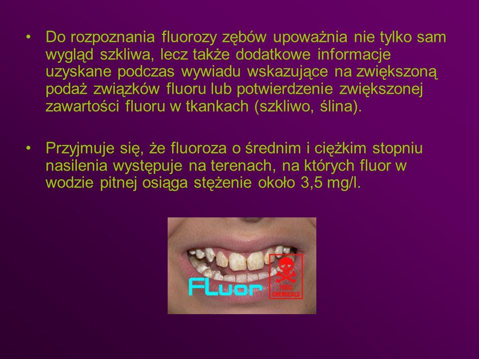 Do rozpoznania fluorozy zębów upoważnia nie tylko sam wygląd szkliwa, lecz także dodatkowe informacje uzyskane podczas wywiadu wskazujące na zwiększon