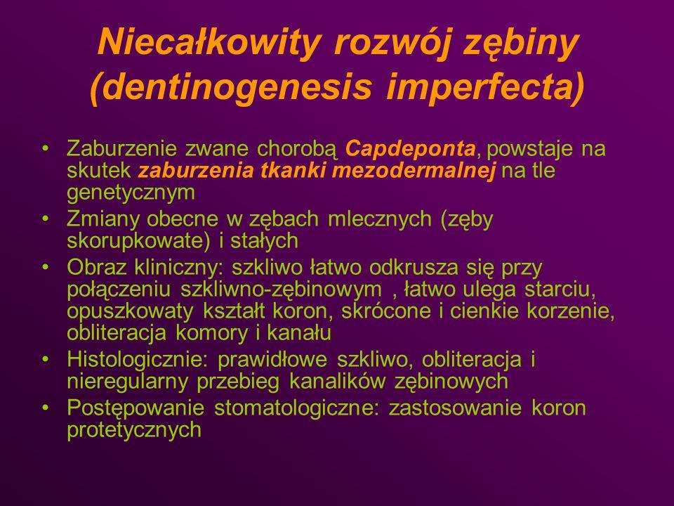 Niecałkowity rozwój zębiny (dentinogenesis imperfecta) Zaburzenie zwane chorobą Capdeponta, powstaje na skutek zaburzenia tkanki mezodermalnej na tle