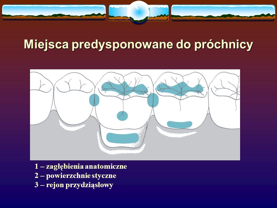 Miejsca predysponowane do próchnicy 1 – zagłębienia anatomiczne 2 – powierzchnie styczne 3 – rejon przydziąsłowy