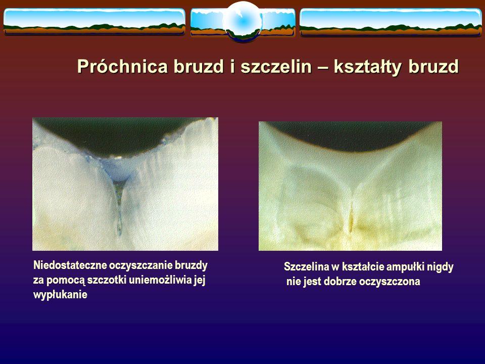 Niedostateczne oczyszczanie bruzdy za pomocą szczotki uniemożliwia jej wypłukanie Szczelina w kształcie ampułki nigdy nie jest dobrze oczyszczona Próchnica bruzd i szczelin – kształty bruzd